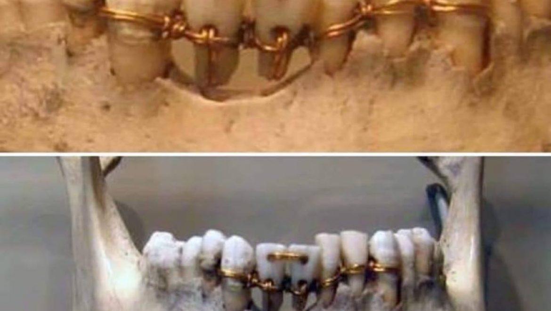 """עבודה של רפואת שיניים מצרית עתיקה משנת 2000 לפנה""""ס"""